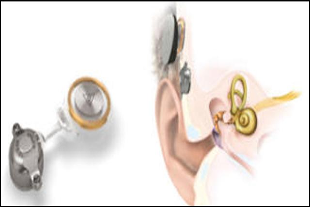 Un audífono bajo la piel